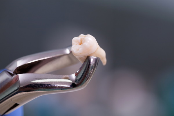 Dental equipment holding an extracted tooth